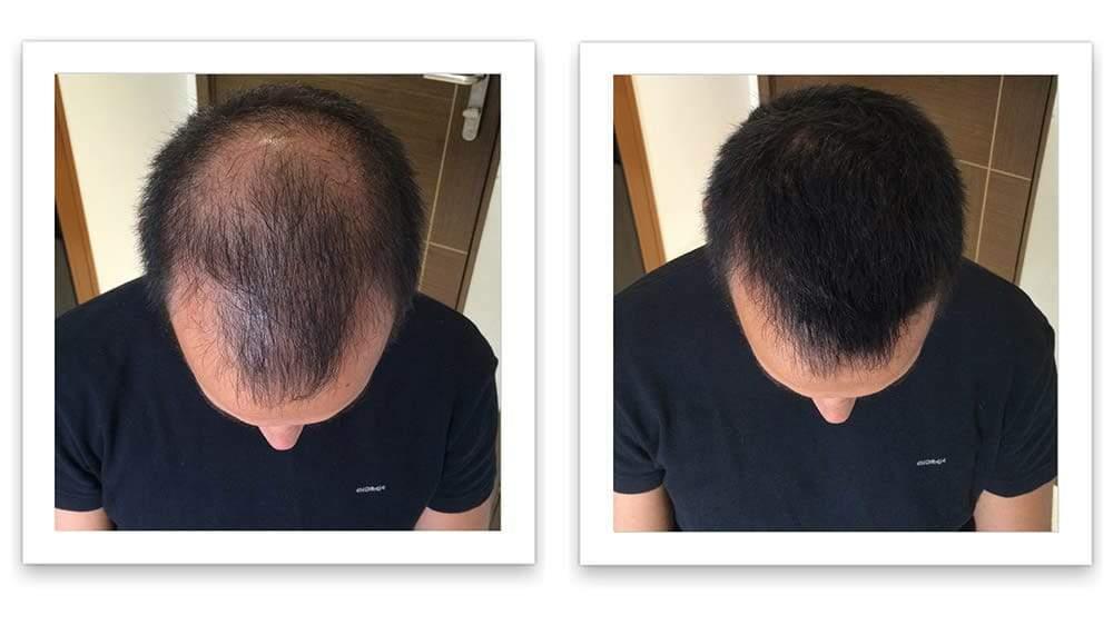 Shampooing pour la croissance des cheveux Pour Homme et Femme